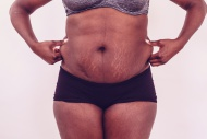 Fat woman with stretch marks ...